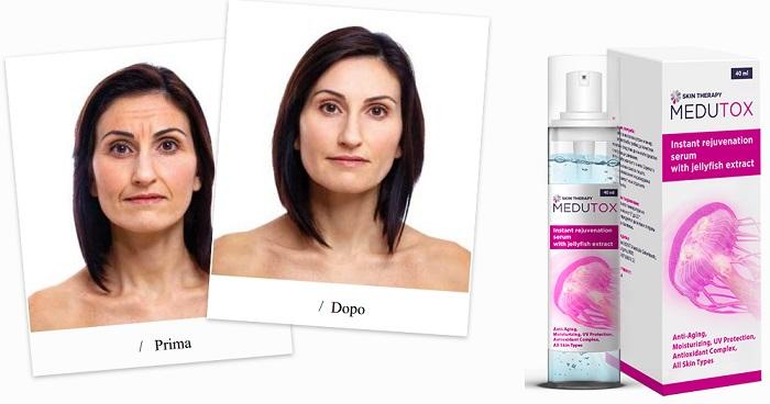 Medutox antirughe: dare alla pelle un aspetto sano e impeccabile!