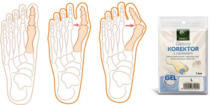 Valgu-correct dalle ossa alle gambe: sbarazzarsi del dolore e dell'infiammazione per 1 corso!