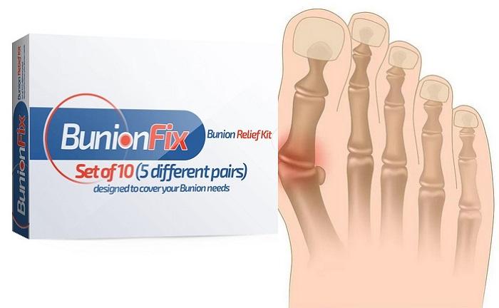 BunionFix dall'osso sulla gamba: rimedio moderno contro il dolore causato da alluce valgo!
