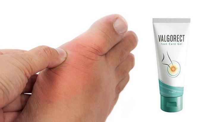 Valgorect dalla deformazione del piede: elimina i dossi sui piedi senza chirurgia!