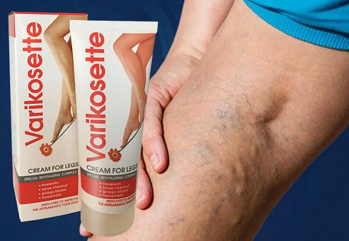 Varikosette vene varicose: contribuisce a sciogliere i coaguli di sangue, abbassa la pressione nelle vene!